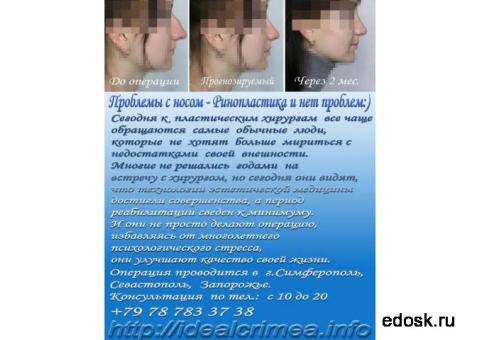 Пластические операции носа, груди, ушей, лица, коррекция фигуры, липосакции.